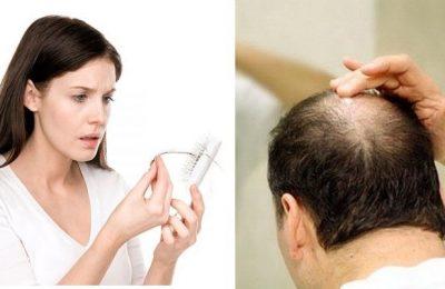 Những biện pháp chống rụng tóc hiệu quả tại nhà