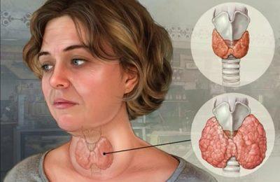 Bướu cổ và cách điều trị