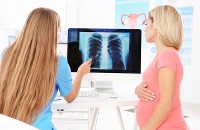 phụ nữ mang thai chụp x quang